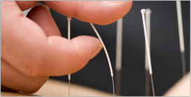 Medical Acupuncture in Toronto